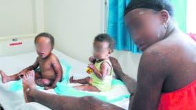 Yacaira Encarnación y los niños durarán cinco días internos en la clínica.  Nicolás Monegro