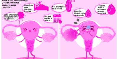 info-ovarios