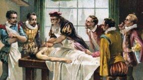 El cirujano militar francés del siglo XVI Ambroise Pare es considerado por muchos el padre de la cirugía moderna.