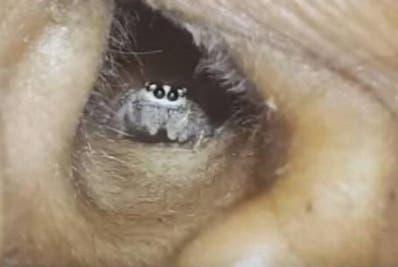 El médico que lo atendió Eliminó  la araña con líquido.