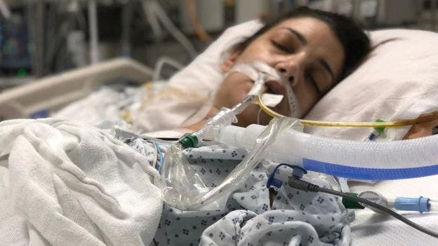 Alin Gragossian recibió un trasplante de corazón en enero de 2019, después de entrar en un coma inducido por motivos médicos.