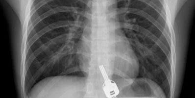 Al realizar  radiografía  se sorprendieron al ver  llaves.