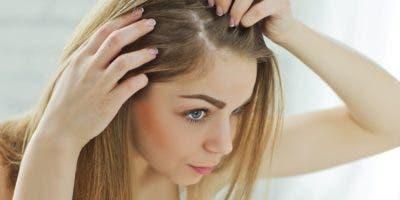 Para prevenir esta  alopecia es de vital importancia mantener el cabello suelto y cambiar de peinado cada dos semanas.