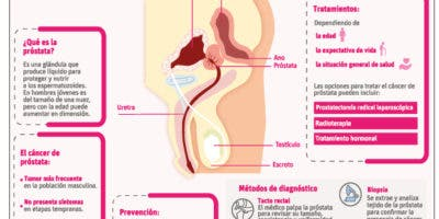 info-cancer-de-prostata
