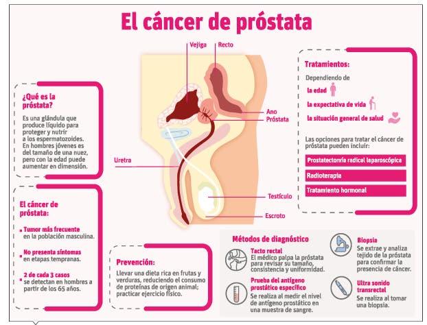 Vigilar sin tratar, otra opción para evitar agravamiento en cáncer de próstata
