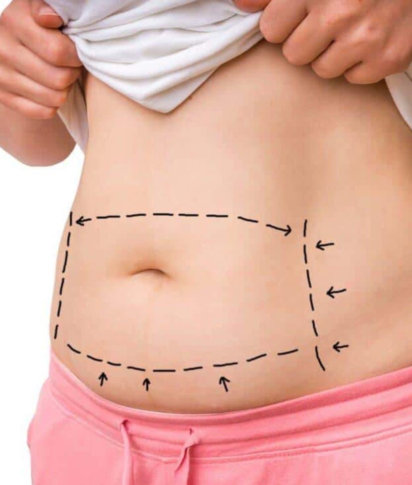 Estas cirugías   tienen más riesgos  en los pacientes obesos.