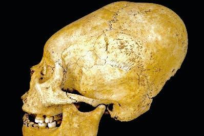 Las deformaciones conocidas por  antropólogos.
