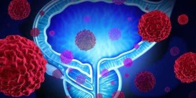Esta alternativa terapeútica ha demostrado disminuir el riesgo de desarrollar metástasis.