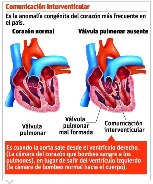 Falta de diagnóstico pone en riesgo vidas de niños con cardiopatías