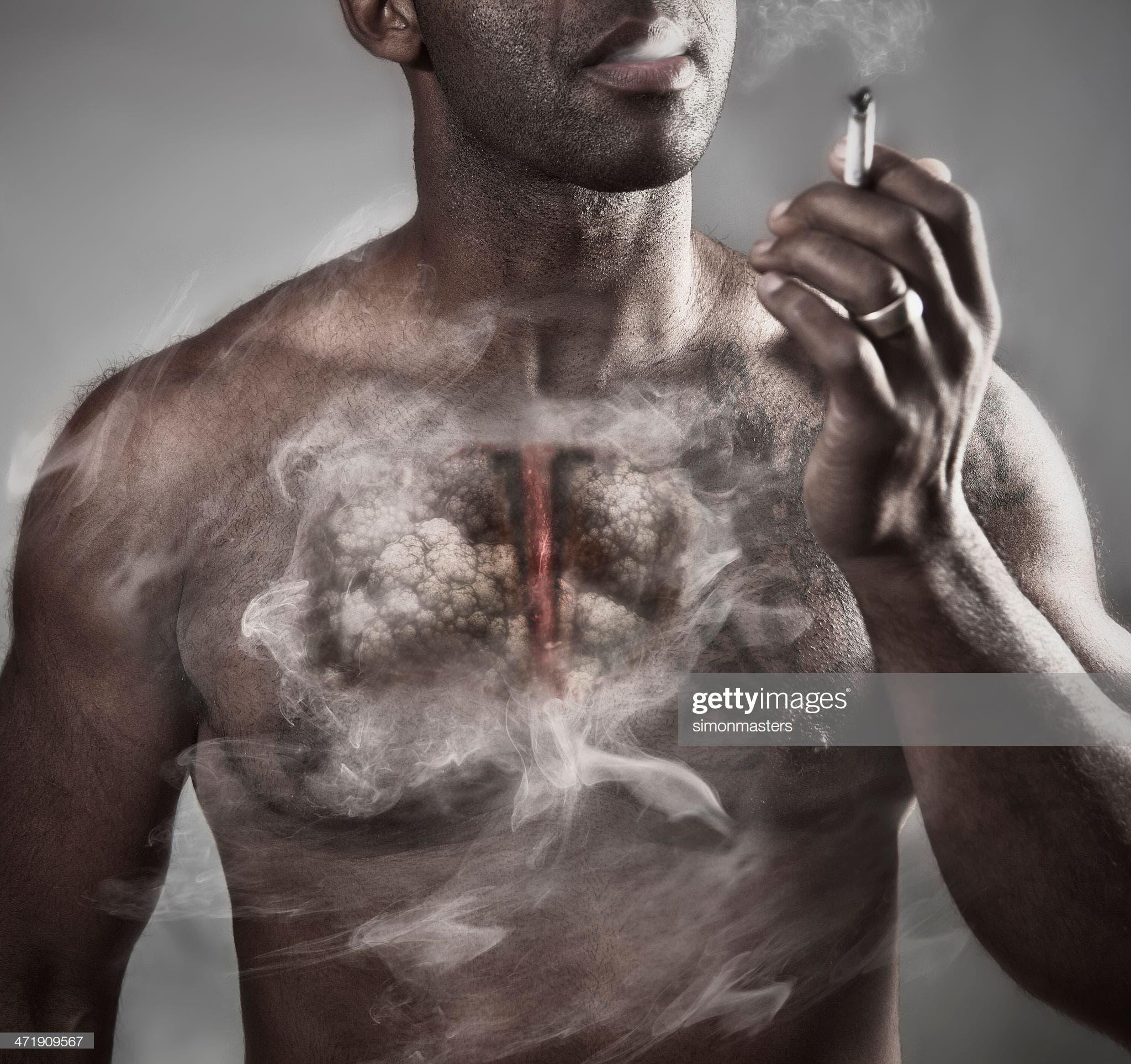 El cáncer de pulmón está muy asociado al consumo de tabaco.