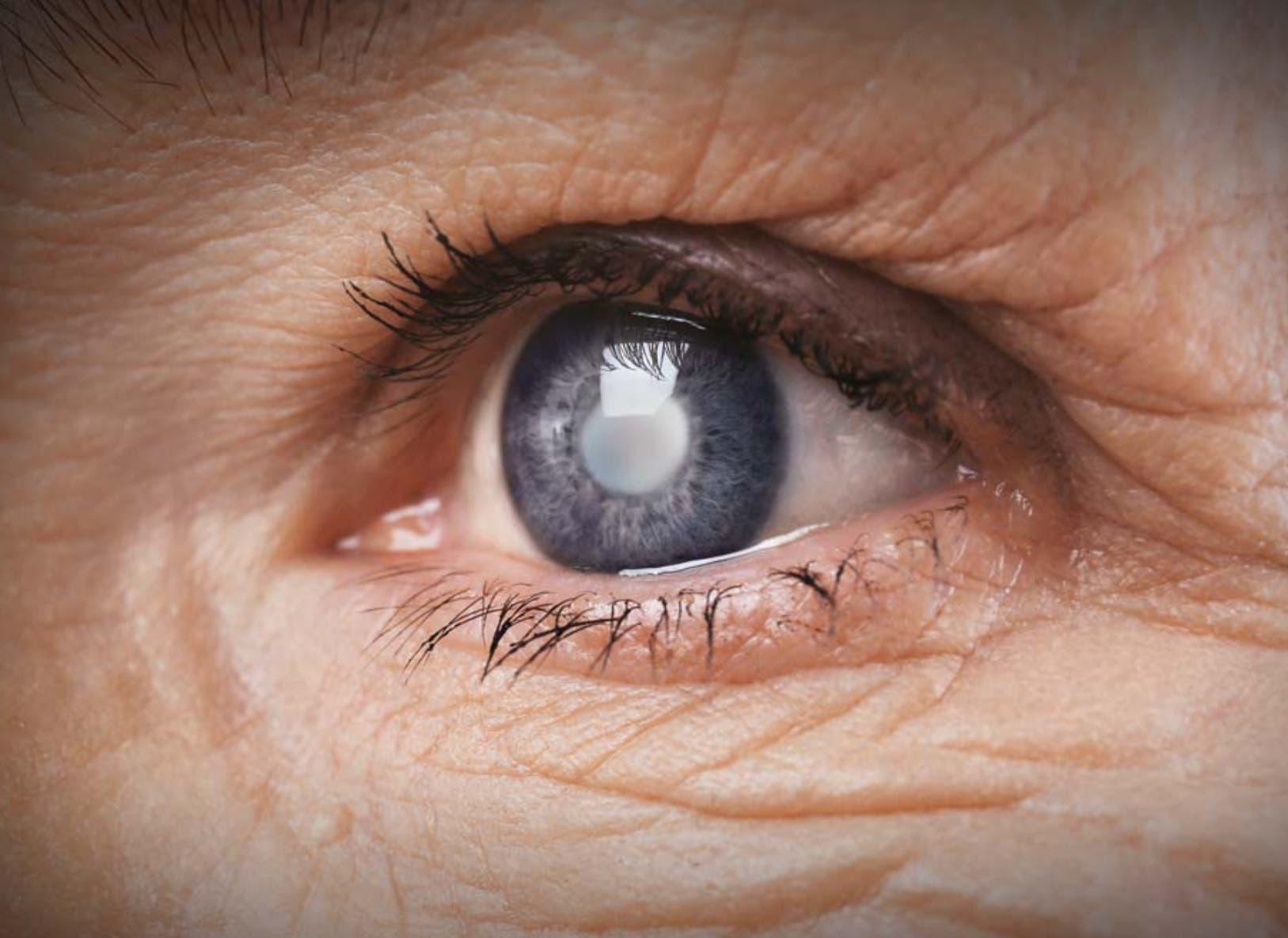 El glaucoma, enfermedad silente que te roba la visión