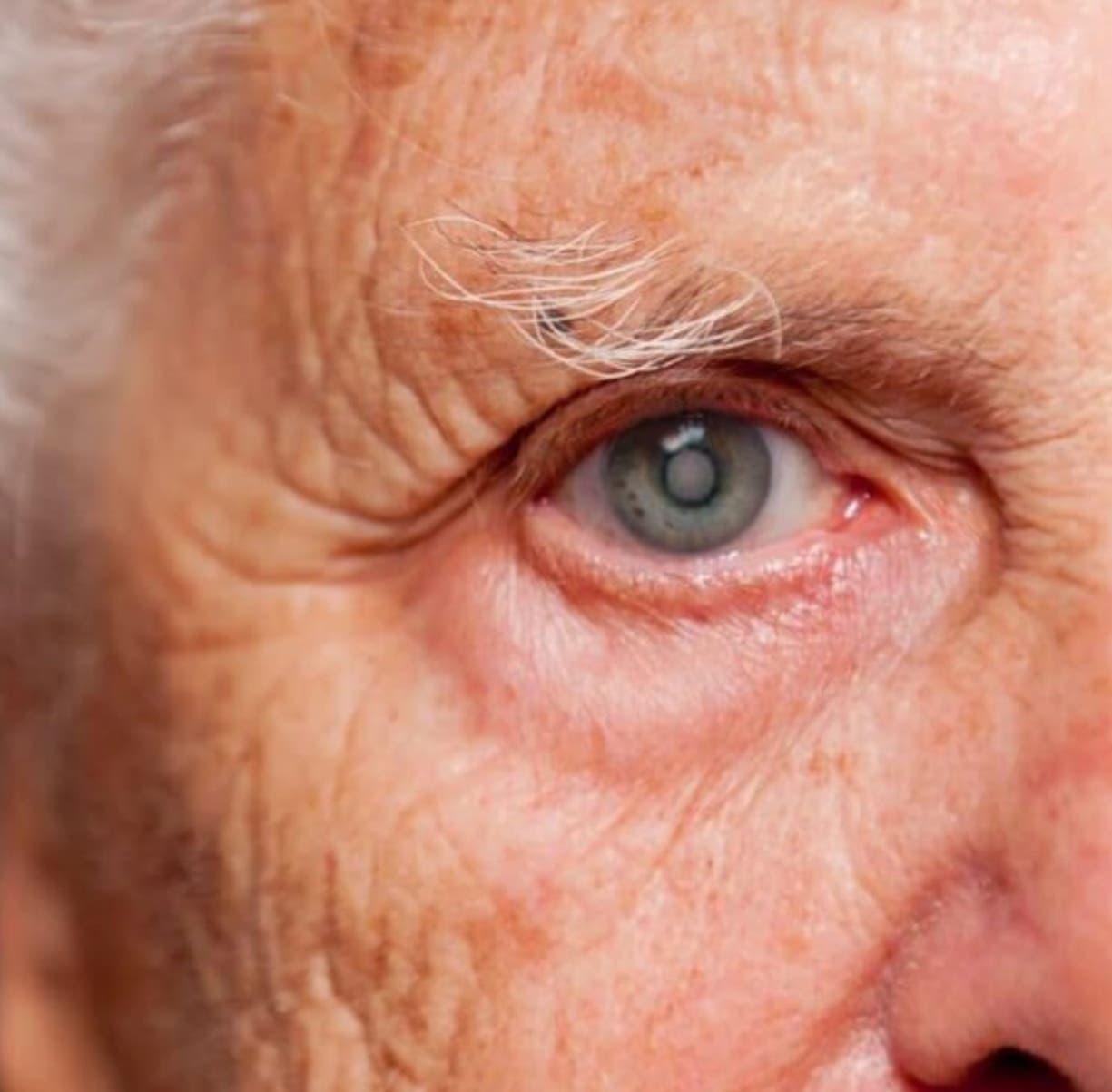 Diabetes y edad  son dos factores de riesgo de padecer cataratas