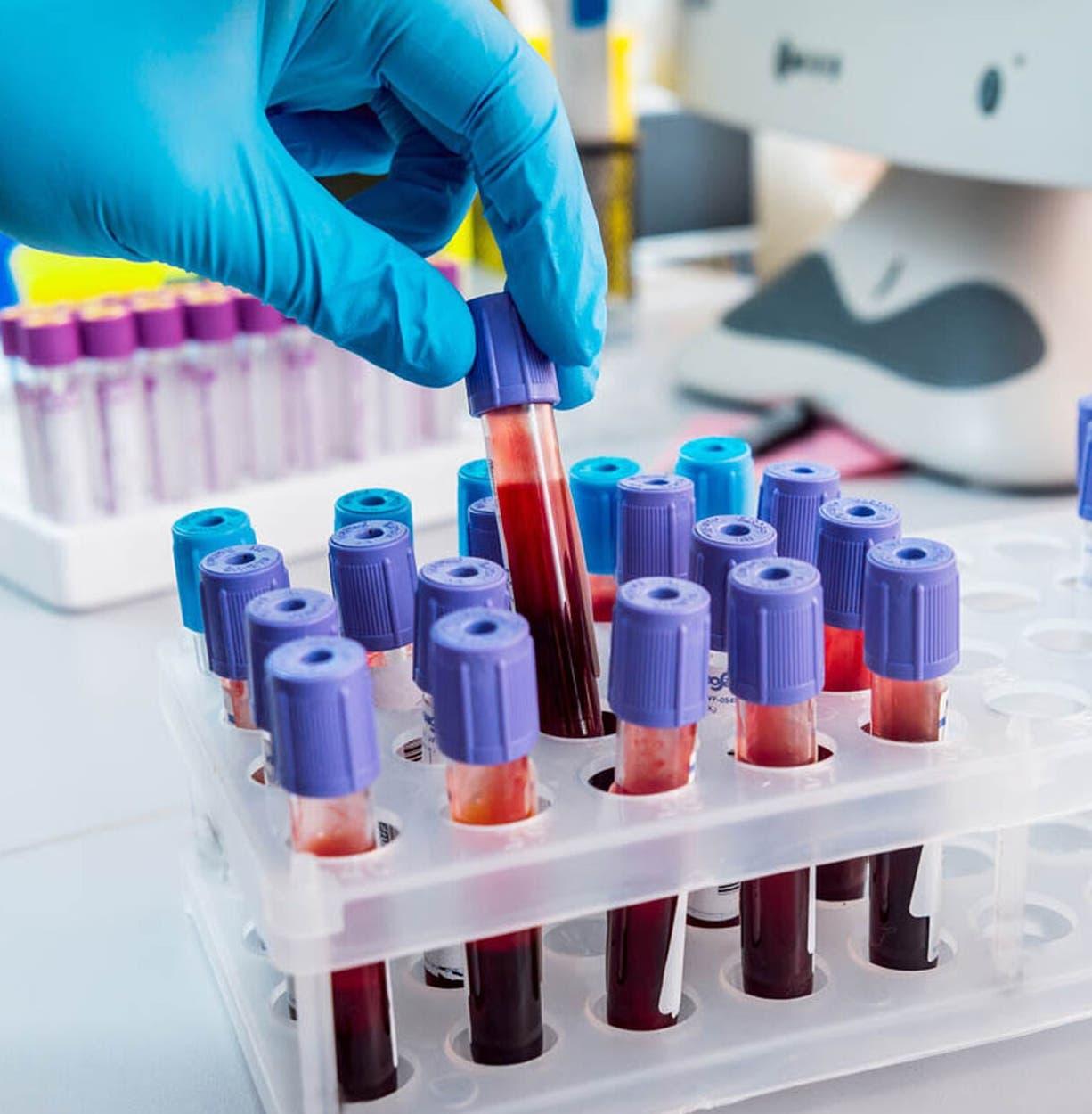 En la sangre se pueden encontrar pistas para conocer  estado de  salud