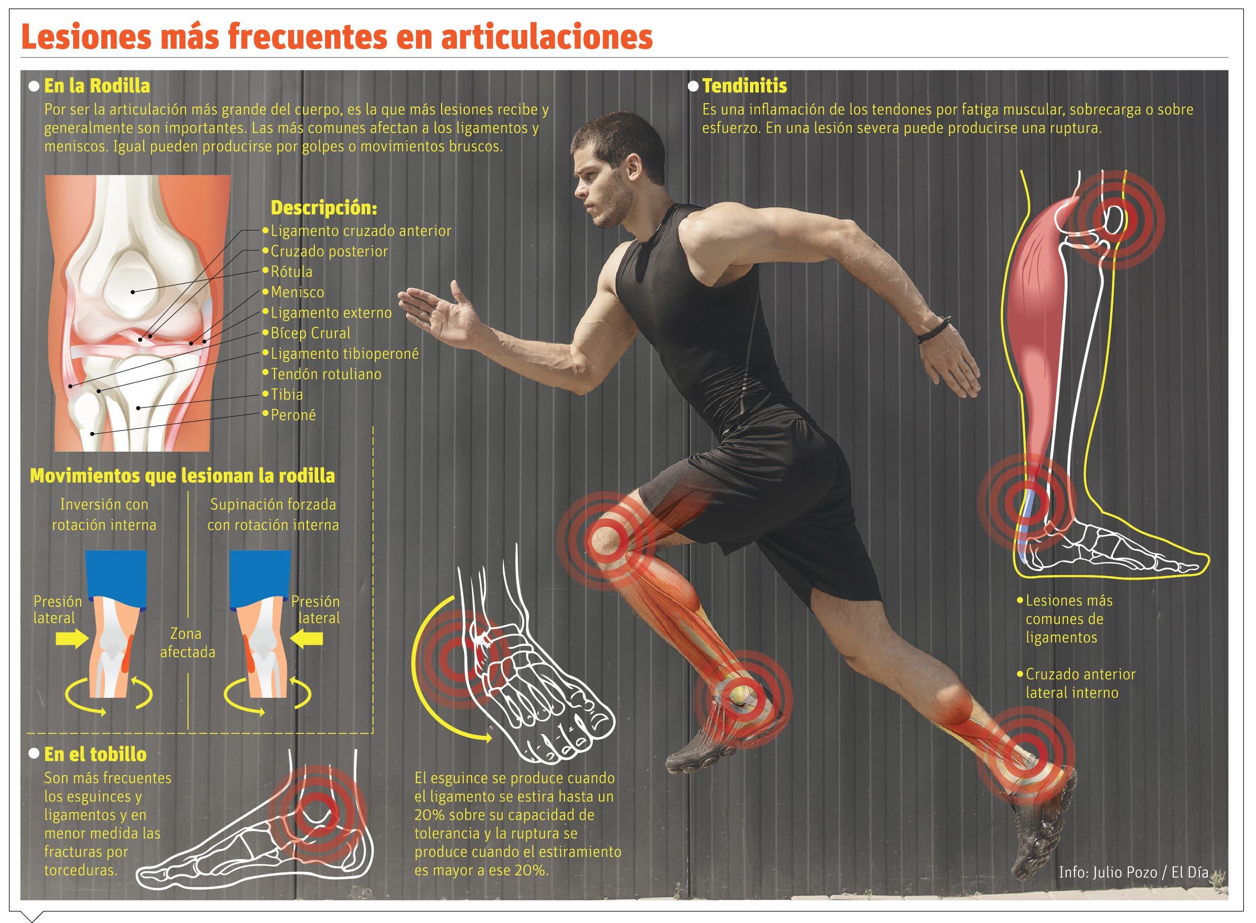 """Auge moda """"Fitness"""" aumenta las lesiones óseas en el país"""