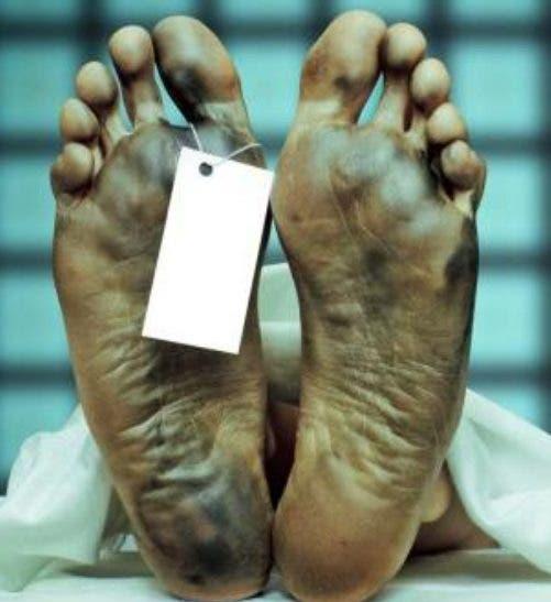 Hallan cadáver de hombre calcinado en una finca de Maimón en Luperón
