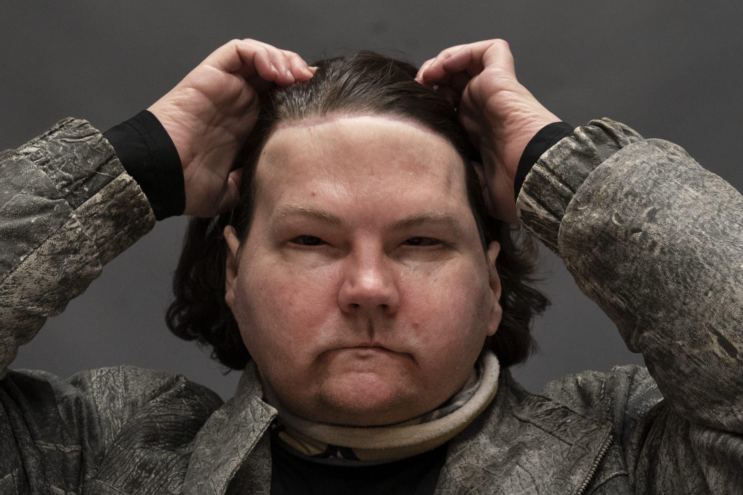 Resultado de imagen para Hombre recibe trasplante de cara y manos