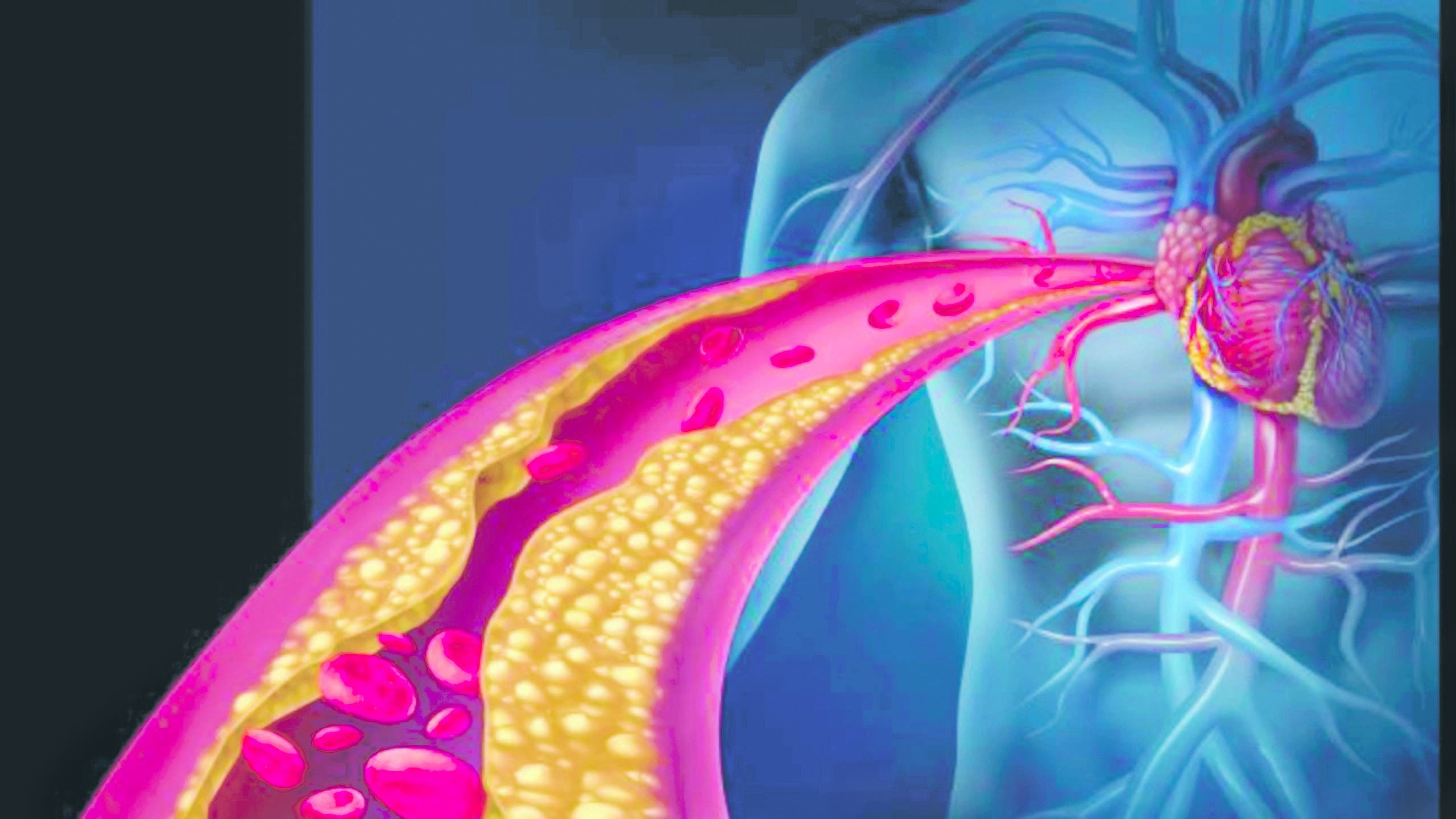 Arterioesclerosis, causa importante de infartos