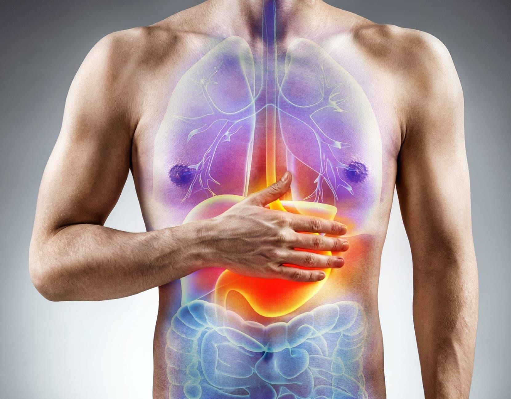 Reflujo gastroesofágico afecta más a hombres