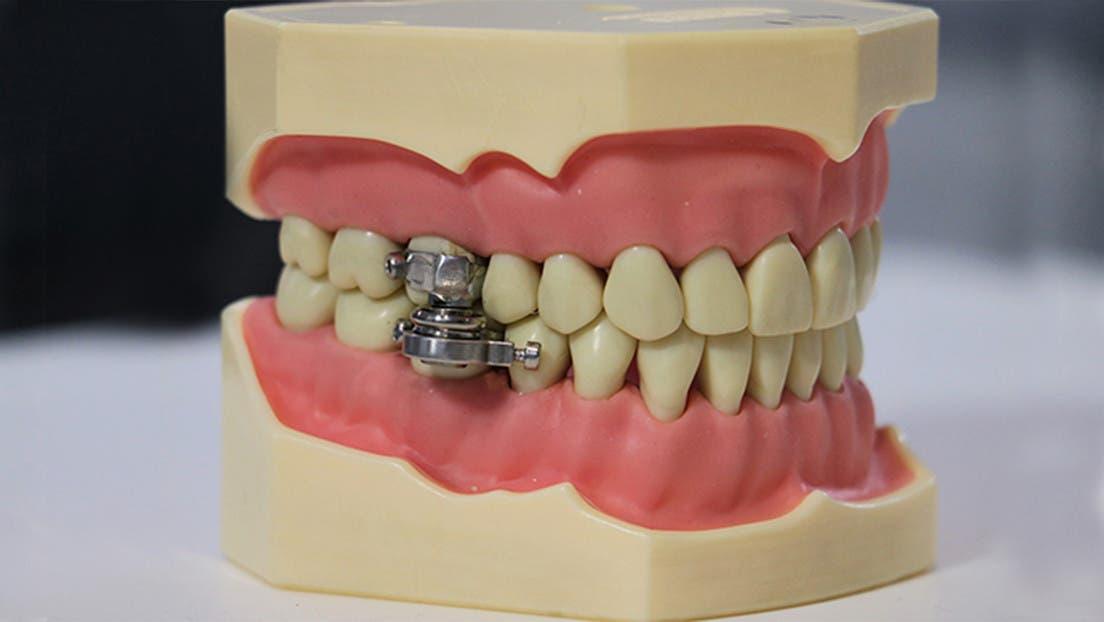 Vídeo: Presentan el «primer dispositivo del mundo para adelgazar» cerrando los dientes con un 'candado'