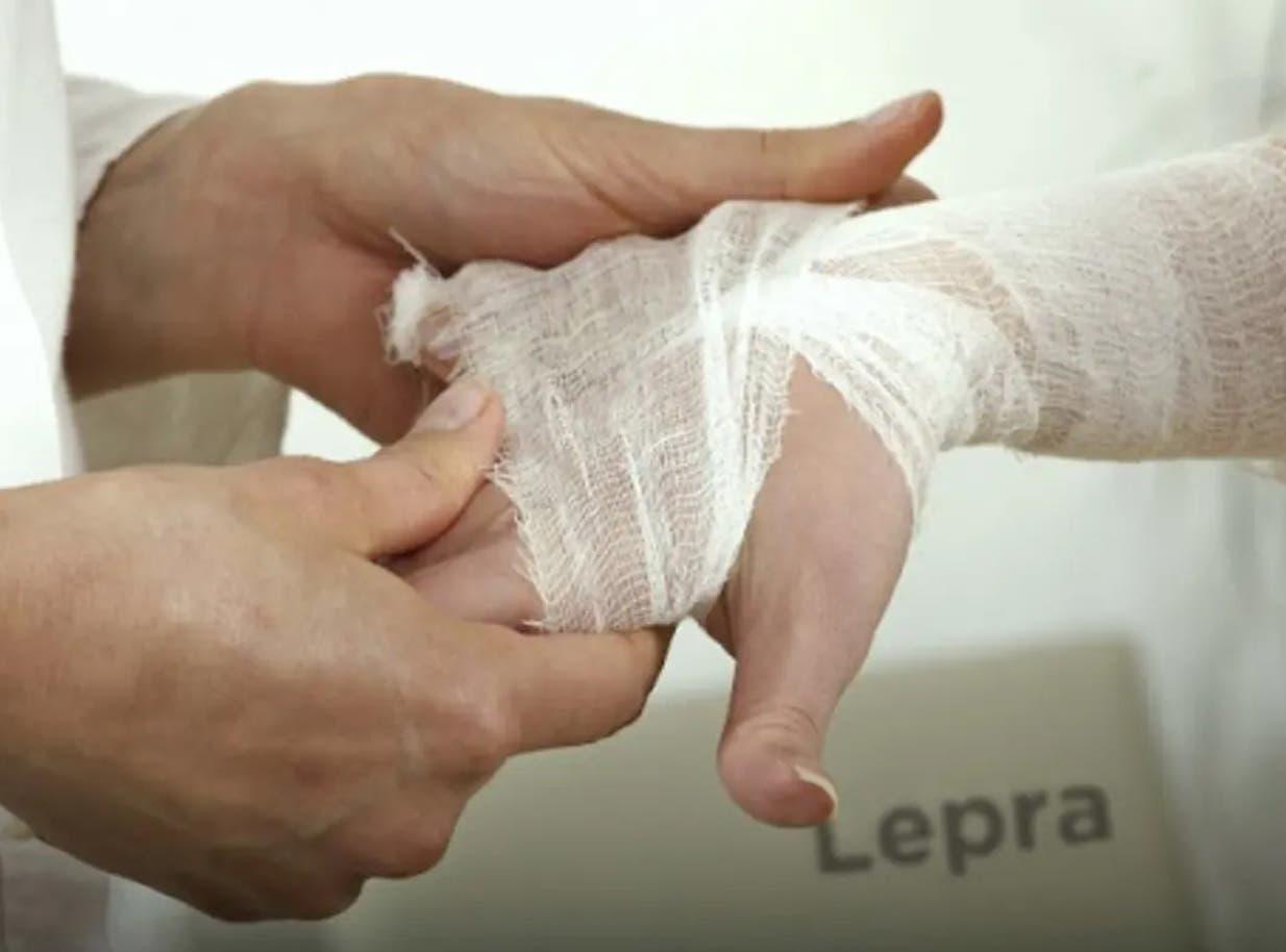 """El problema de la lepra tuvo un """"stop"""" con las acciones de patronato"""